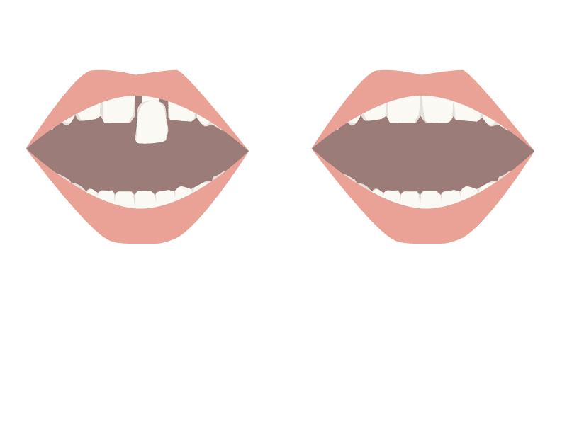 So setzt der Zahnarzt den Zahnersatz vom Dentallabor ein