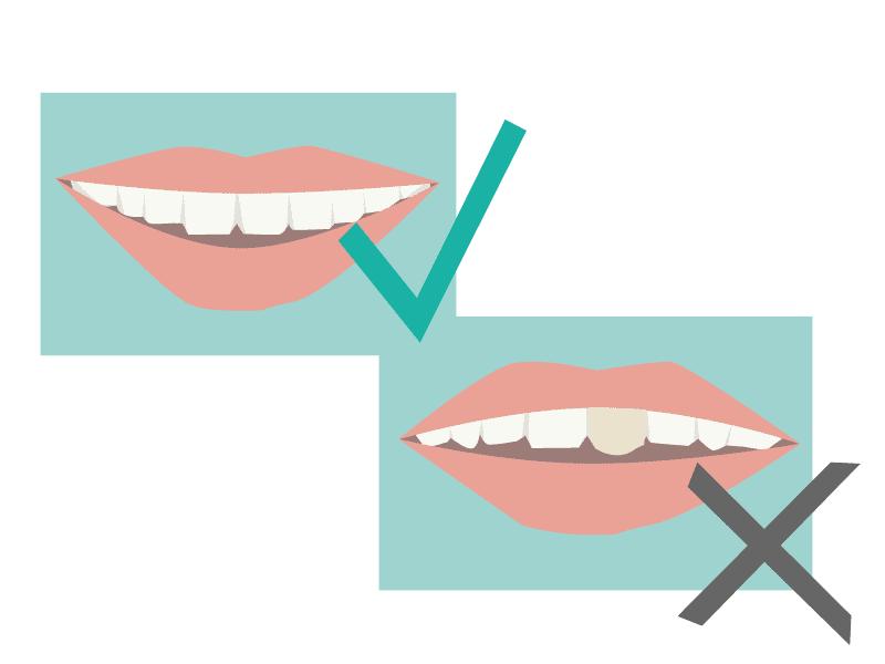 Was guten und perfekten Zahnersatz vom Dentallabor ausmacht