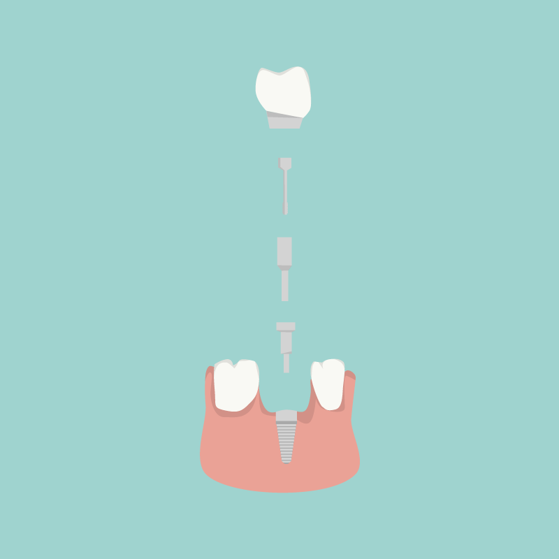 Aufbau eines Zahnimplantats