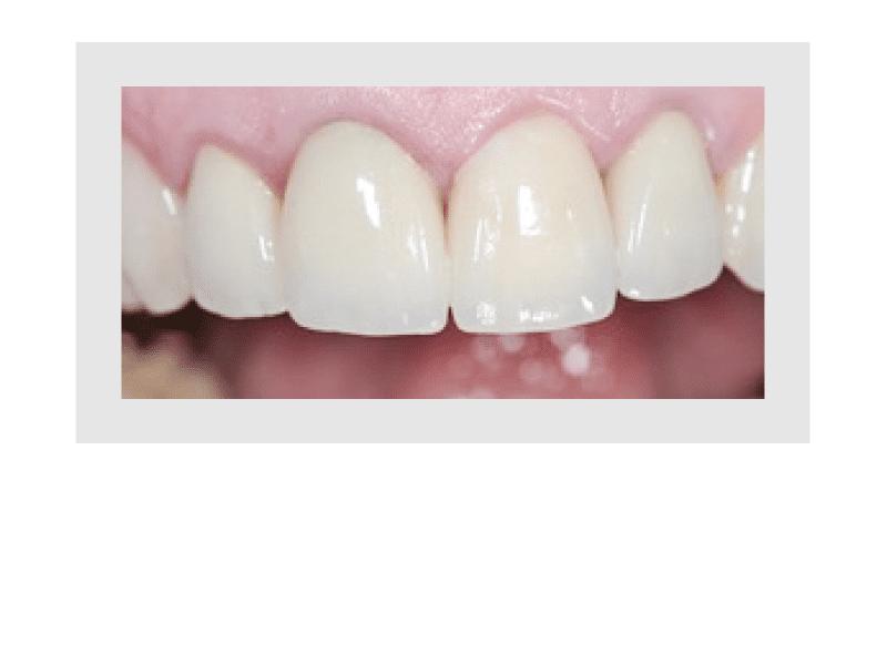 Guter Zahnersatz, gute Verarbeitung der Zahnkrone