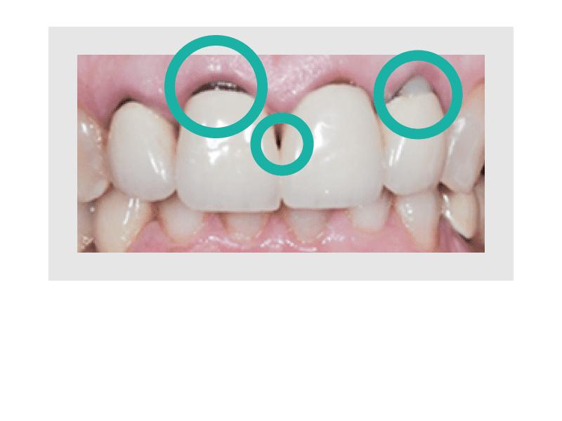 Lückenhafter Zahnersatz mit schlechter Verarbeitung