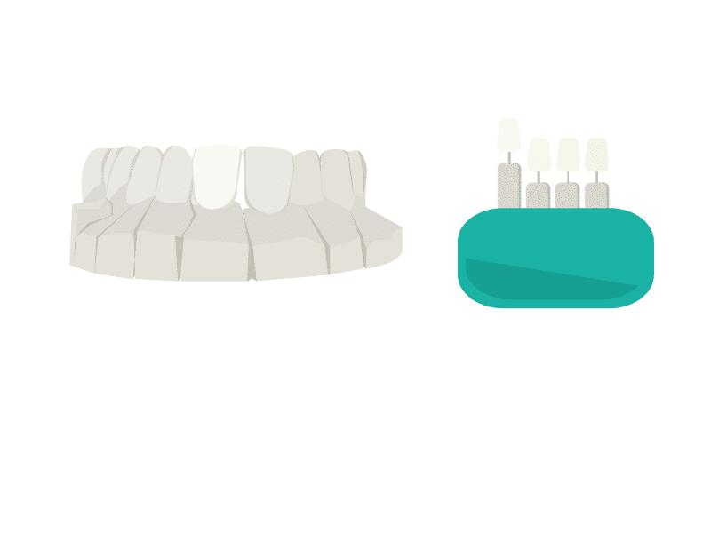 Anpassung des Zahnersatzes am Meistermodell durch das Dentallabor