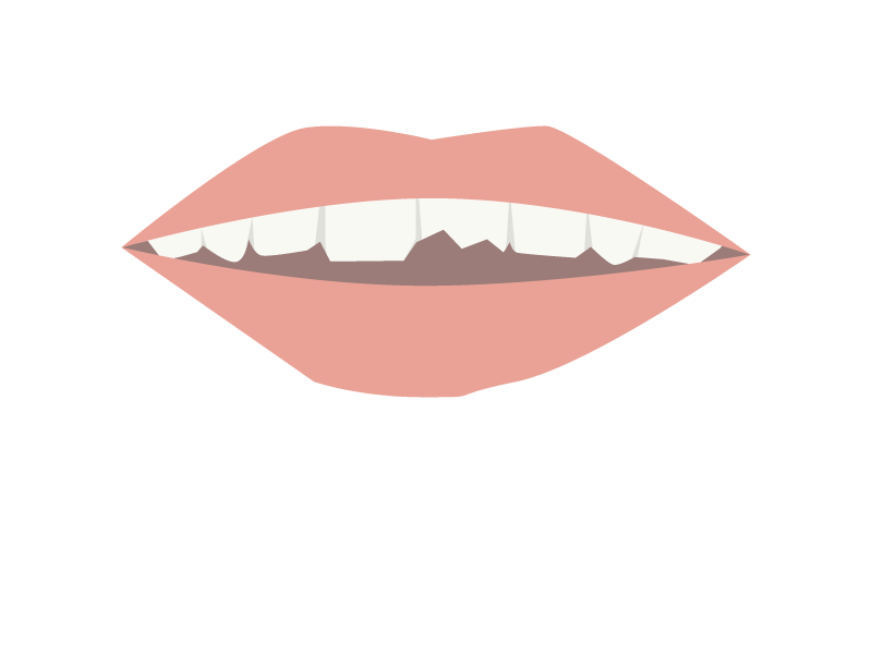 Zahn abgebrochen, eine Zahnkrone wird benötigt