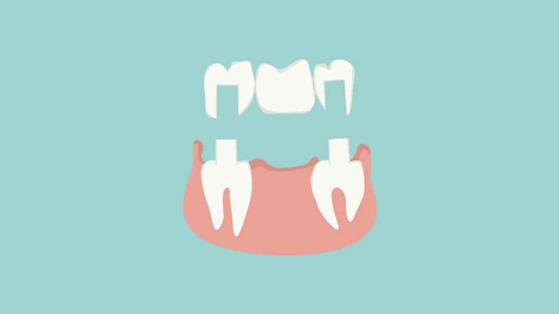 So funktioniert eine Zahnbrücke