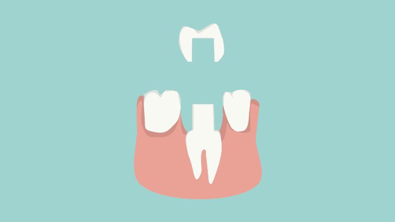 Aufbau einer Zahnkrone